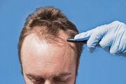 can any doctor become a hair transplant surgeon?