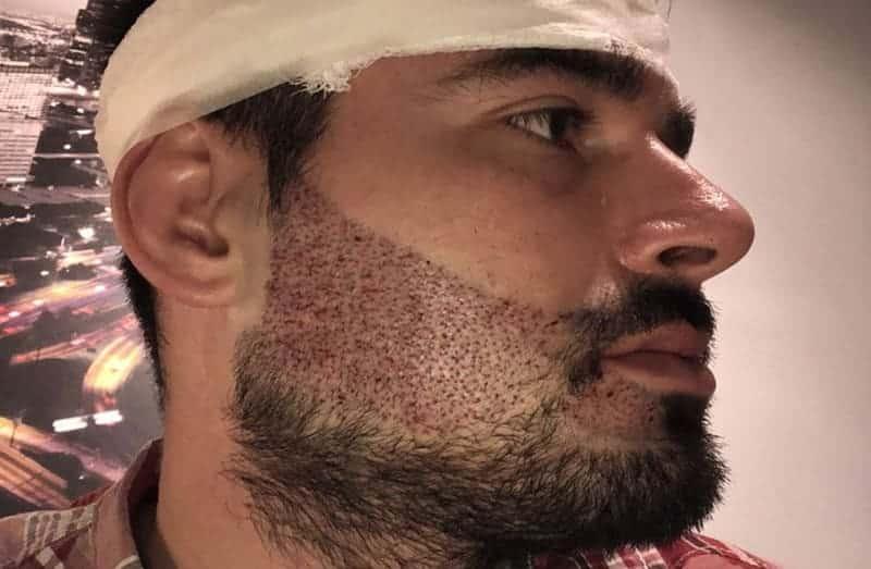 Facial Hair Transplant in Los Angeles