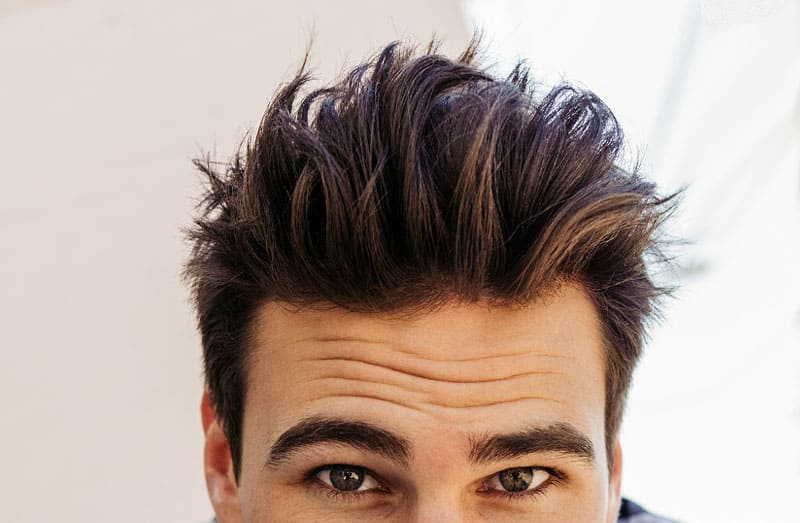 What Are My Hair Restoration Goals?