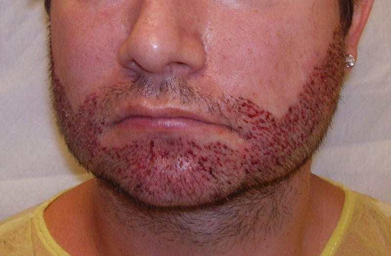 Is an FUE Beard Transplant the Right Choice for Me?