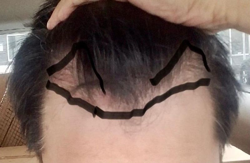What Results Can I Expect from an FUE Hair Transplant After 6 Months?