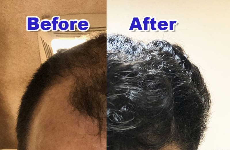 What Will My Hair Transplant Look Like 1 Year After Surgery?