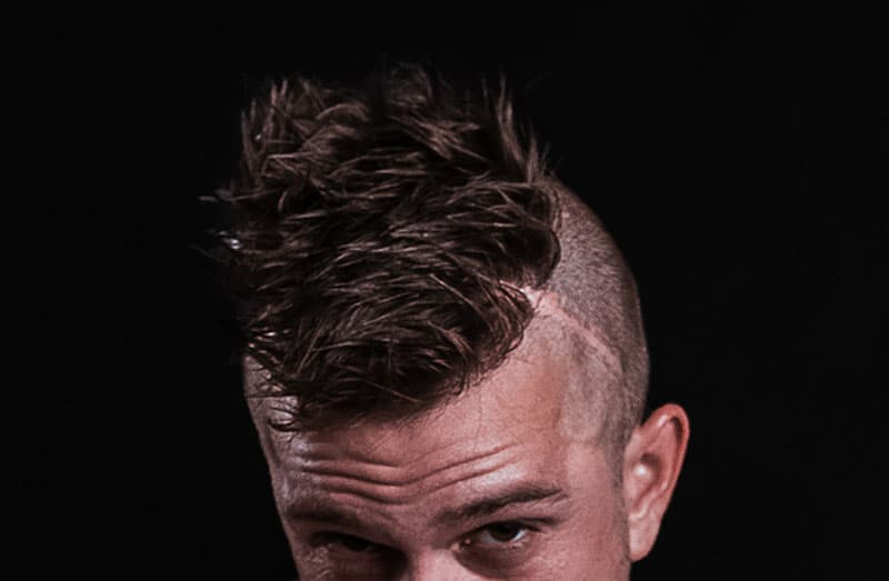 Will Hair Transplants Take Root and Grow on a Scar?