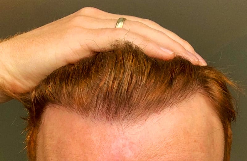 Can Redheads Get Hair Transplant Surgery?
