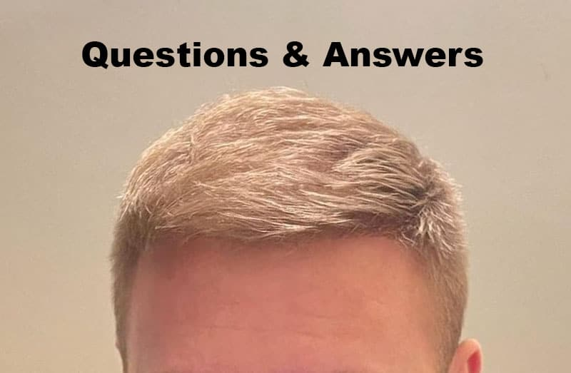 Common Hair Transplant Questions Answered