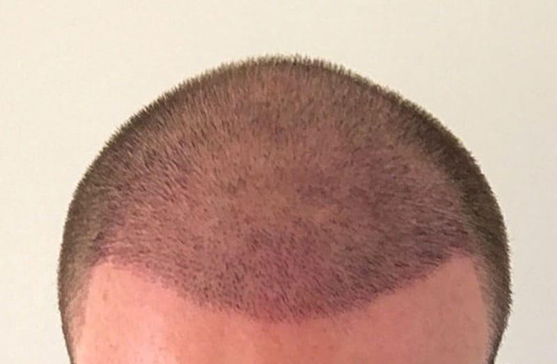 Hair Transplant Expectations - 1 Week Post Op