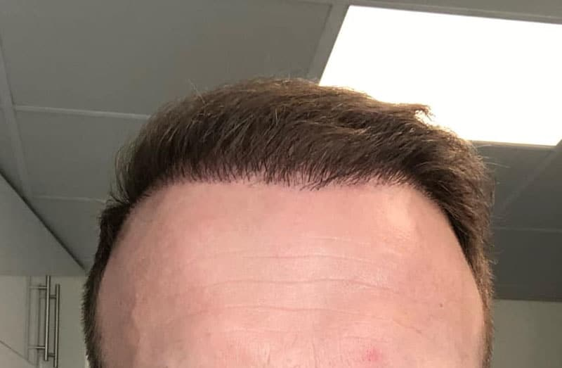 It Looks Like I Got Hair Plugs. Can This Be Repaired?