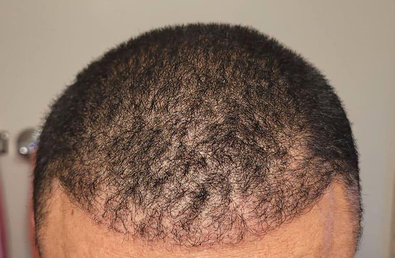 The Best FUE Hair Transplants in Los Angeles