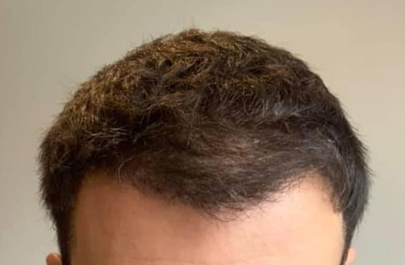 WHAT CAN I EXPECT FROM AN LA HAIR CLINIC FUT PROCEDURE?