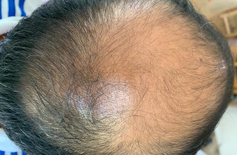 WHAT DOES AN LA HAIR CLINIC FUE COST?