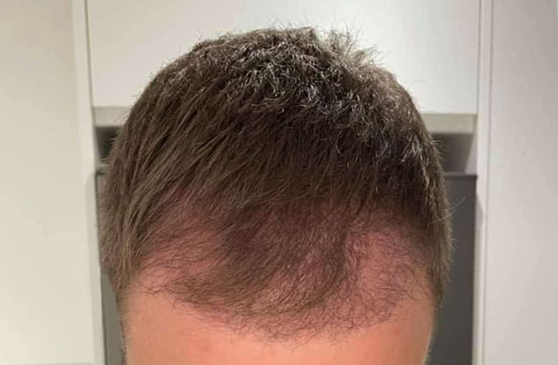 What Will My Hair Transplant Look Like 3 Months After Surgery?