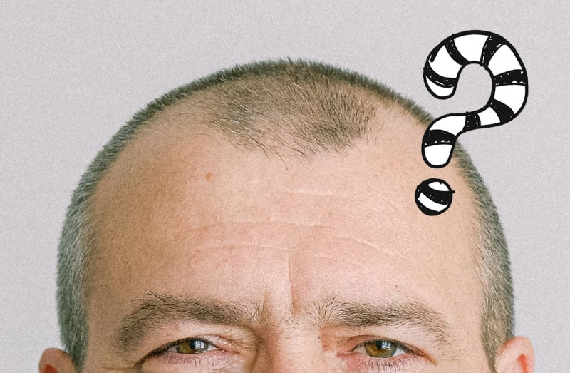 Your Hair Restoration Questions Answered