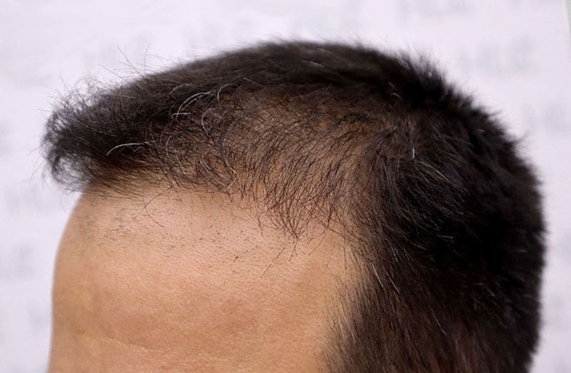 Best Hair Transplant Beats the Average LA Hair Clinic Cost on FUE