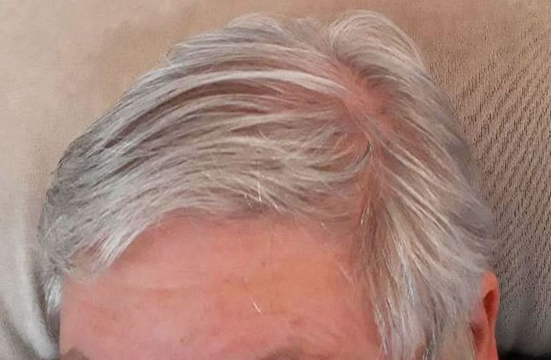 woman with pink scalp from hair loss