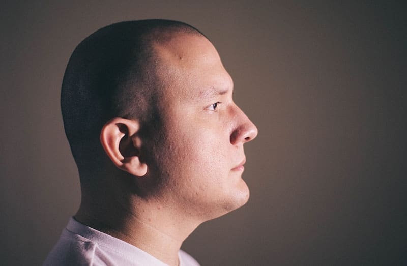 Why Do Most Hair Transplant Patients Choose FUE?