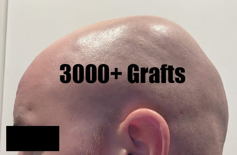 NEED A LARGE NUMBER OF GRAFTS? WE'RE THE PERFECT HAIR CLINIC FOR YOU!