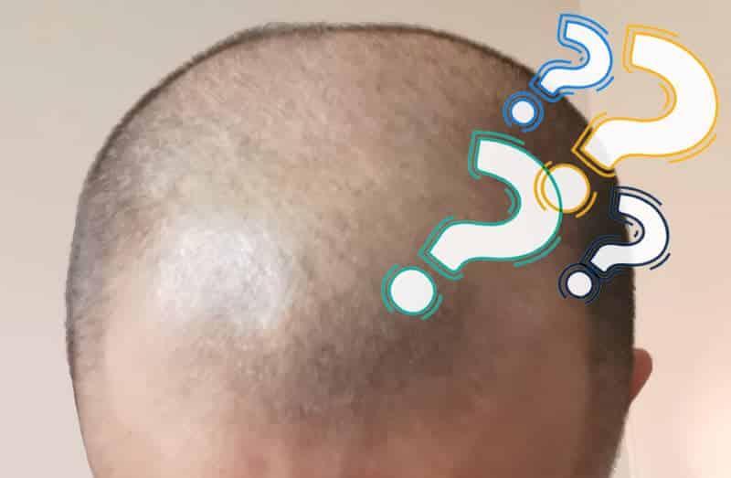 Should I Consider Getting a Hair Transplant?