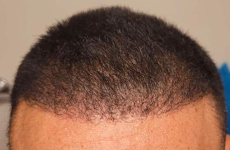 The Best Value on FUE LA Hair Transplants