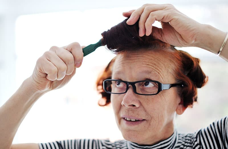 What is Female Pattern Baldness and How Can I Stop It?