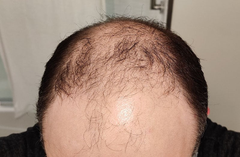 What's the Average Hair Transplant Success Rate?