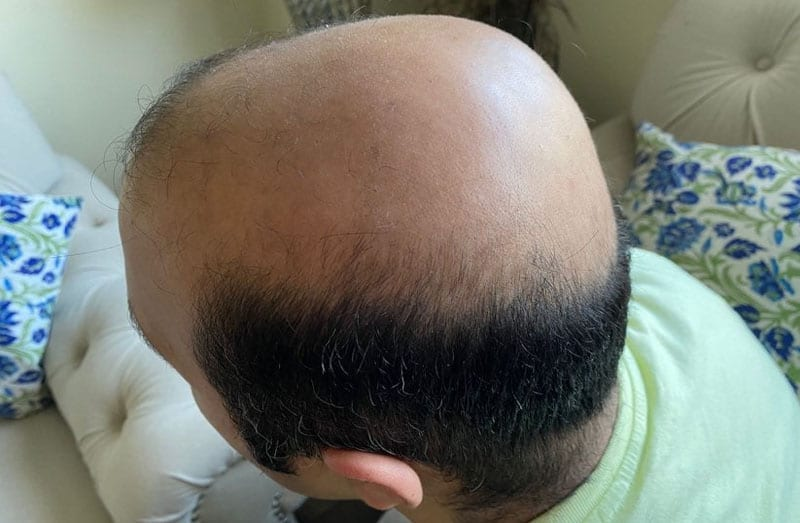 Who Offers the Best Hair Restoration in Los Angeles?