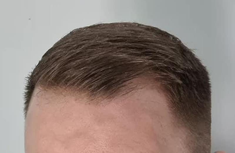 Capillus Can Help Restore Thinning Hair
