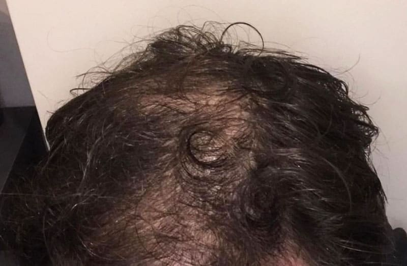 Is It Possible to Reverse Male Pattern Baldness?